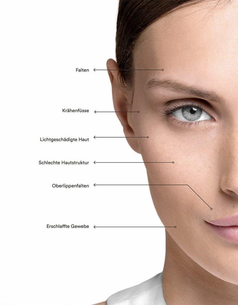 Indikationen von Reviderm Microneedling Skinneeder