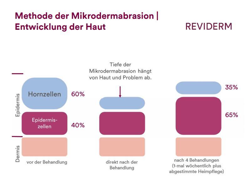 Entwicklung der Haut bei Mikrodermabrasion-Kur